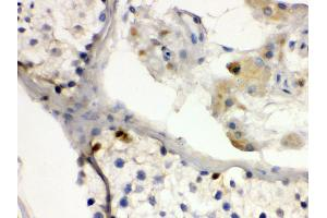 Image no. 2 for anti-Doublesex and Mab-3 Related Transcription Factor 1 (DMRT1) (AA 98-128), (N-Term) antibody (ABIN3043450)