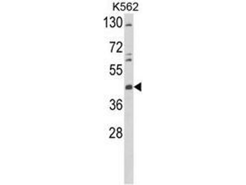 Western Blotting (WB) image for anti-tyrosine Aminotransferase (TAT) (Middle Region) antibody (ABIN955086)
