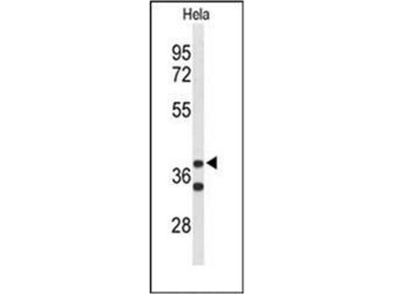 Western Blotting (WB) image for anti-Cytohesin 3 (CYTH3) (AA 371-400), (C-Term) antibody (ABIN951804)