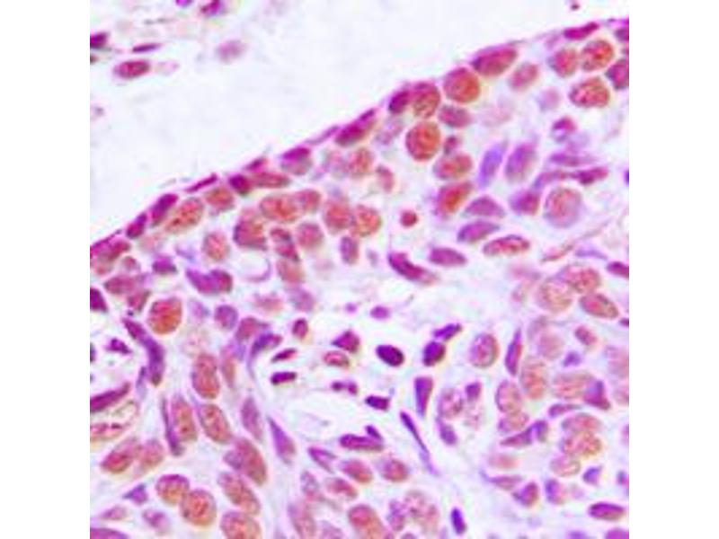 Immunohistochemistry (IHC) image for anti-MAP3K3 antibody (Mitogen-Activated Protein Kinase Kinase Kinase 3) (Center) (ABIN2706529)
