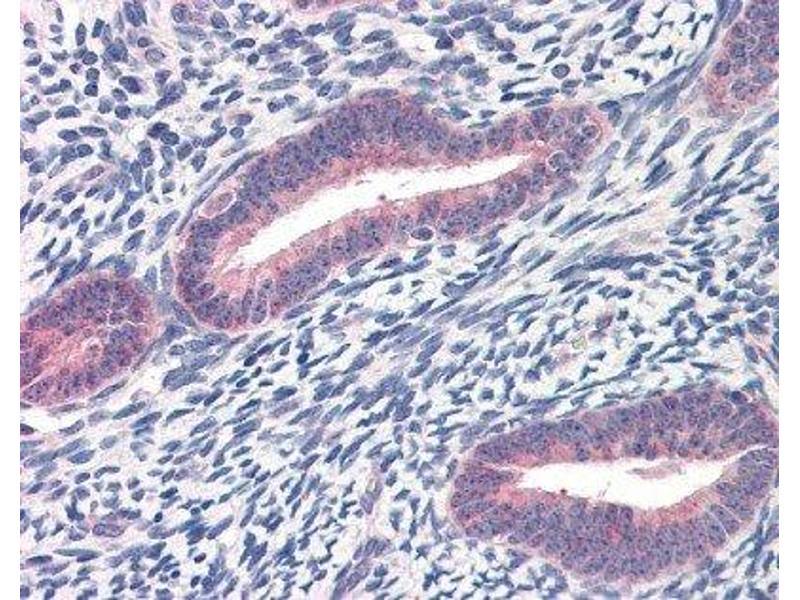 Immunohistochemistry (Paraffin-embedded Sections) (IHC (p)) image for anti-Twist Homolog 1 (Drosophila) (TWIST1) antibody (ABIN189738)