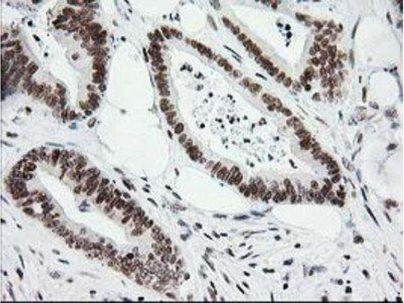 Immunohistochemistry (Paraffin-embedded Sections) (IHC (p)) image for anti-Cryptochrome 2 (Photolyase-Like) (CRY2) antibody (ABIN4300636)