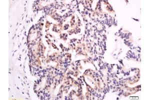 Image no. 1 for anti-Chromosome 17 Open Reading Frame 37 (C17orf37) (AA 10-60) antibody (ABIN1387117)