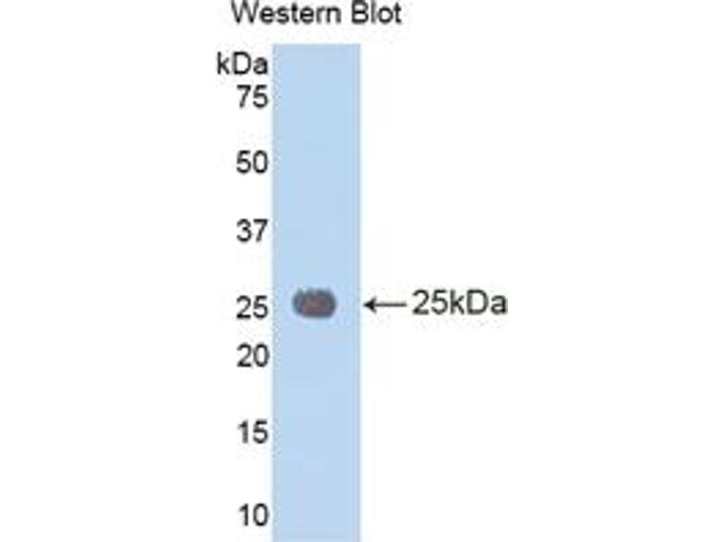 Interleukin 1 Receptor Accessory Protein (IL1RAP) ELISA Kit (2)