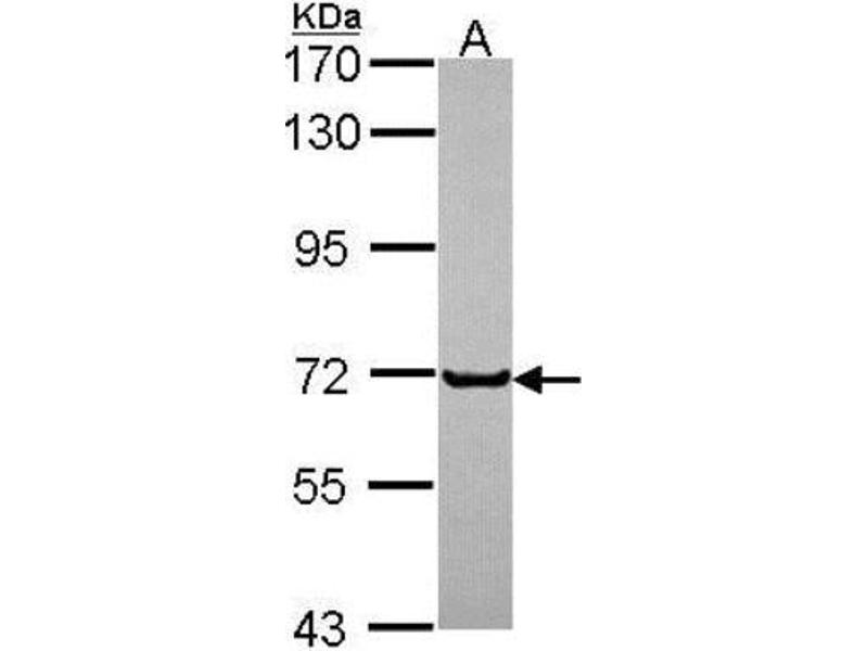 Western Blotting (WB) image for anti-Growth Hormone Receptor antibody (GHR) (Center) (ABIN441424)