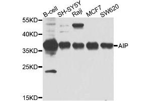 Image no. 1 for anti-Aryl Hydrocarbon Receptor Interacting Protein (AIP) antibody (ABIN6572046)