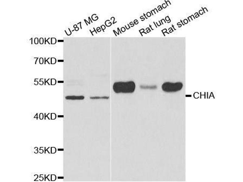 Image no. 1 for anti-Chitinase, Acidic (CHIA) antibody (ABIN6138531)
