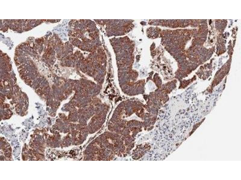 Immunohistochemistry (Paraffin-embedded Sections) (IHC (p)) image for anti-Chemokine (C-X-C Motif) Receptor 7 (CXCR7) (Center) antibody (ABIN441317)