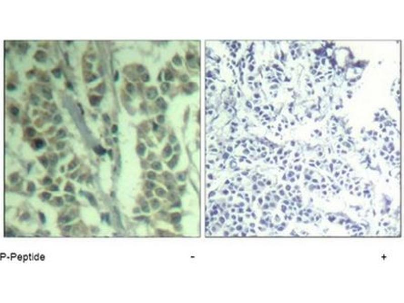 image for anti-CBL antibody (Cas-Br-M (Murine) Ecotropic Retroviral Transforming Sequence) (pTyr700) (ABIN319293)