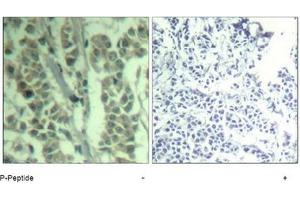 image for anti-CBL antibody (Cas-Br-M (Murine) Ecotropic Retroviral Transforming Sequence) (pTyr700) (ABIN319294)