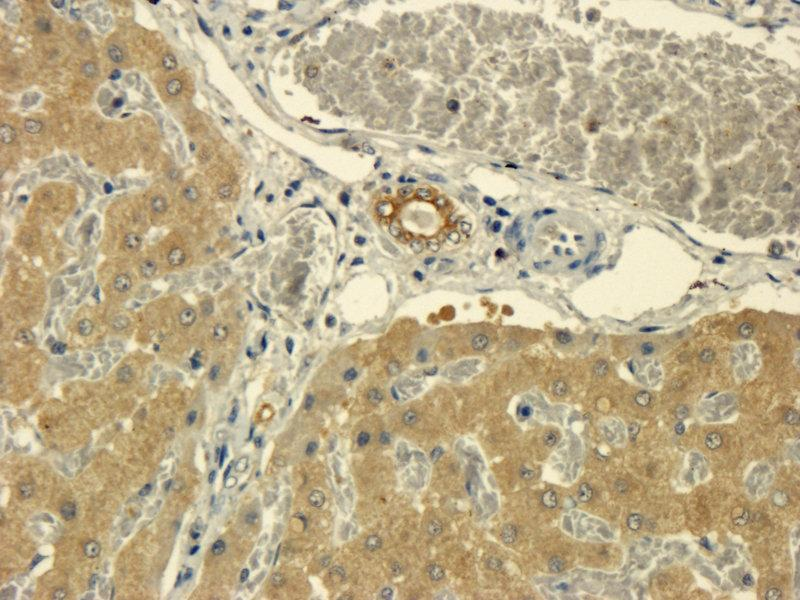 Immunohistochemistry (Paraffin-embedded Sections) (IHC (p)) image for anti-Tumor Necrosis Factor antibody (TNF) (ABIN2506723)