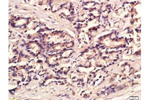 Immunohistochemistry (Paraffin-embedded Sections) (IHC (p)) image for anti-Interleukin 12 (IL12) (AA 60-85) antibody (ABIN734453)