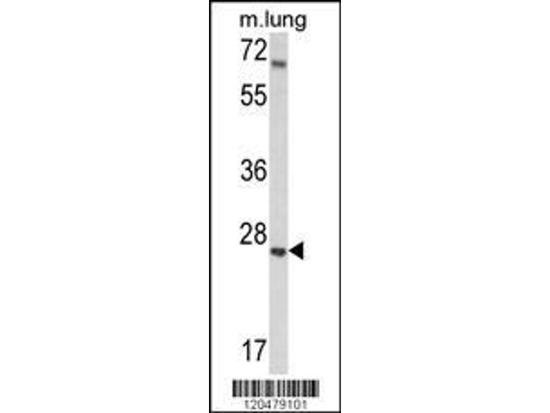 Western Blotting (WB) image for anti-Insulin-Like Growth Factor Binding Protein 4 (IGFBP4) (AA 66-92), (N-Term) antibody (ABIN390928)