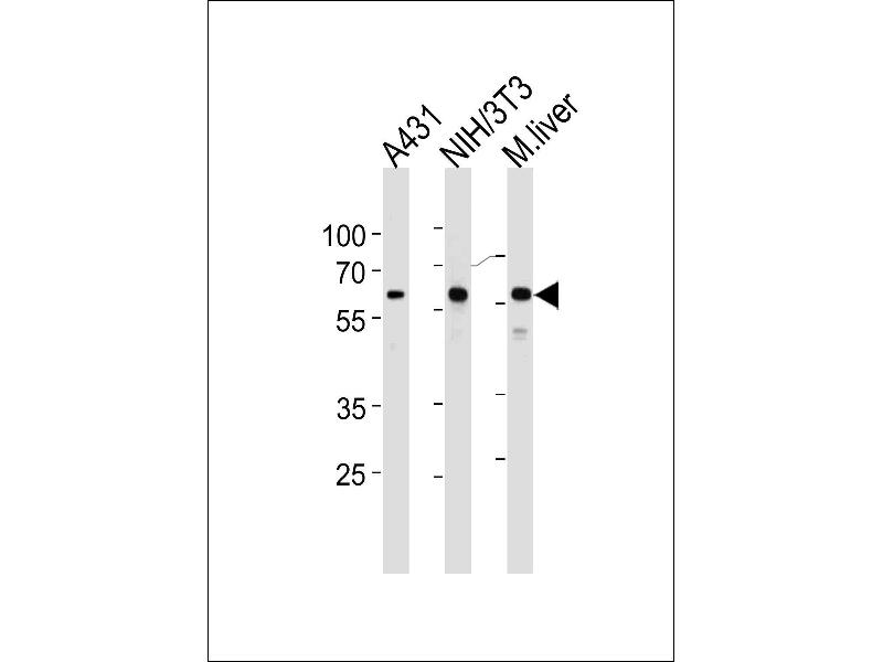 Western Blotting (WB) image for anti-Heat Shock 60kDa Protein 1 (Chaperonin) (HSPD1) (AA 396-423), (C-Term) antibody (ABIN1882094)