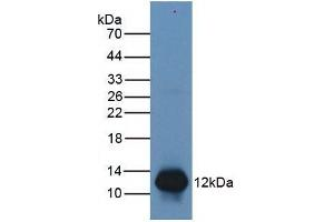 Image no. 3 for S100 Calcium Binding Protein A8 (S100A8) ELISA Kit (ABIN6574287)