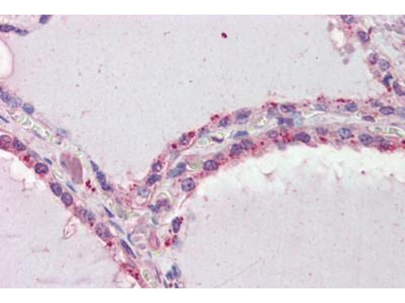 Immunohistochemistry (Paraffin-embedded Sections) (IHC (p)) image for anti-Death-Associated Protein Kinase 2 (DAPK2) (AA 359-370) antibody (ABIN462279)
