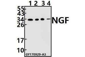 Image no. 1 for anti-Nerve Growth Factor beta (NGFB) (AA 51-100) antibody (ABIN6713298)