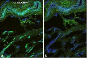 Image no. 1 for anti-Cerebral Cavernous Malformation 2 (CCM2) (AA 1-444), (N-Term) antibody (ABIN616006)