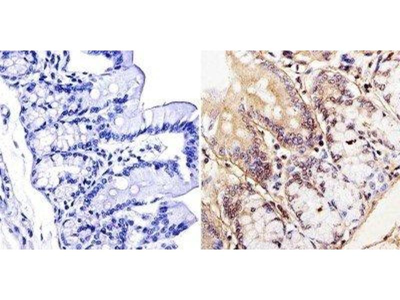 Immunohistochemistry (Paraffin-embedded Sections) (IHC (p)) image for anti-TRAF3 antibody (TNF Receptor-Associated Factor 3) (ABIN266928)