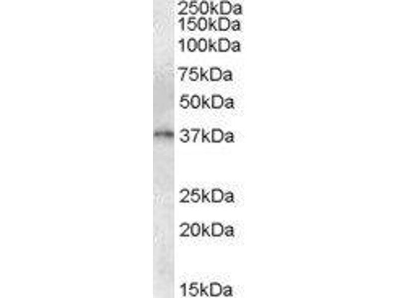 Western Blotting (WB) image for anti-GTP Cyclohydrolase 1 (GCH1) antibody (ABIN451682)