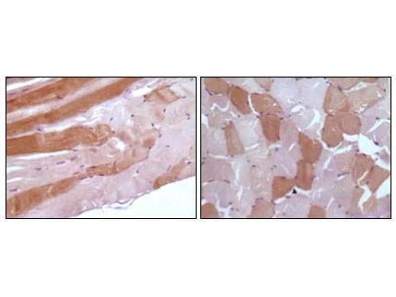 Immunohistochemistry (IHC) image for anti-Myoglobin (MB) antibody (ABIN3210012)