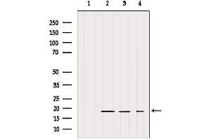 Image no. 3 for anti-Intraflagellar Transport 20 Homolog (Chlamydomonas) (IFT20) antibody (ABIN6262478)