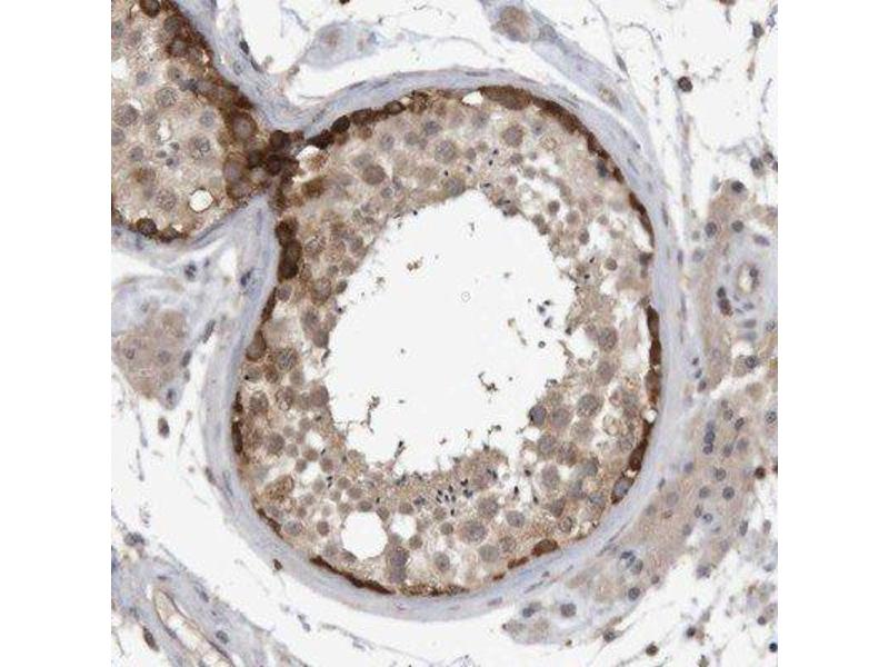 Immunohistochemistry (Paraffin-embedded Sections) (IHC (p)) image for anti-Nuclear Factor of Activated T-Cells, Cytoplasmic, Calcineurin-Dependent 2 (NFAT1) antibody (ABIN4339295)