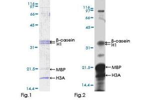 Image no. 1 for Calcium/calmodulin-Dependent Protein Kinase IV (CAMK4) (AA 1-473) protein (GST tag) (ABIN1347939)
