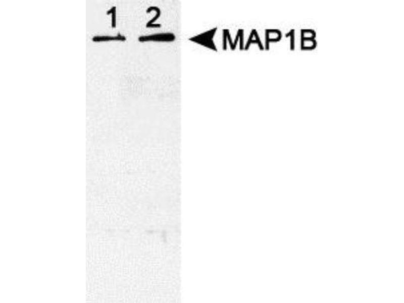 Western Blotting (WB) image for anti-MAP1B antibody (Microtubule-Associated Protein 1B) (C-Term) (ABIN449248)
