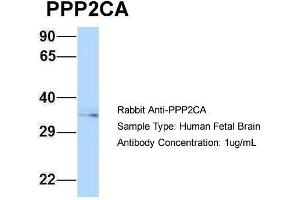 Western Blotting (WB) image for anti-Protein Phosphatase 2, Catalytic Subunit, alpha Isozyme (PPP2CA) (N-Term) antibody (ABIN2789352)