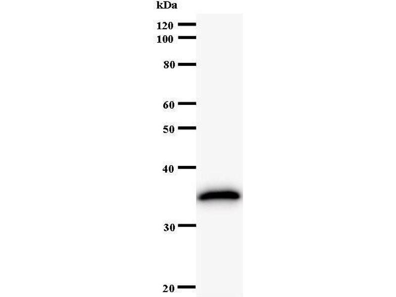 Western Blotting (WB) image for anti-STAT3 antibody (Signal Transducer and Activator of Transcription 3 (Acute-Phase Response Factor)) (ABIN933094)