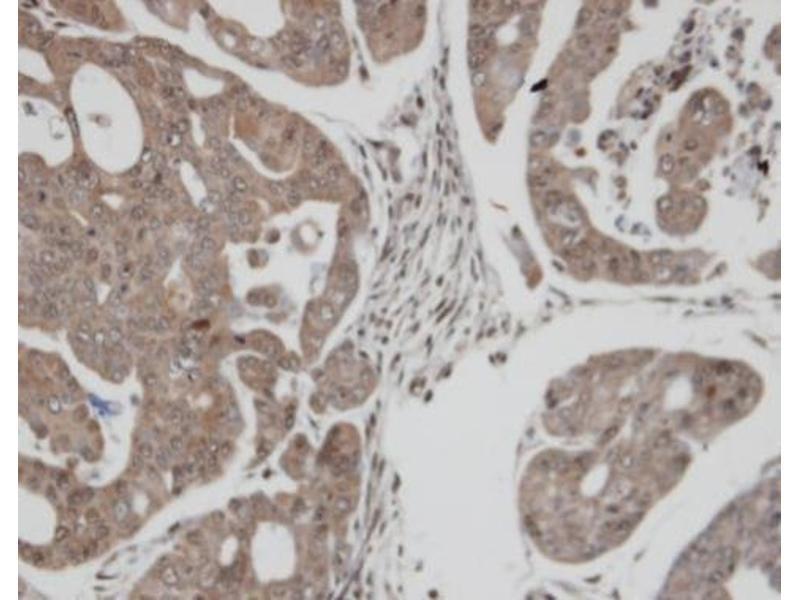 Immunohistochemistry (IHC) image for anti-Thioredoxin Reductase 1 (TXNRD1) (Center) antibody (ABIN2855577)