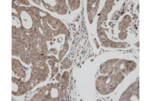 Immunohistochemistry (IHC) image for anti-Thioredoxin Reductase 1 (TXNRD1) (Center) antibody (ABIN2855577)