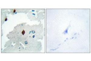 Image no. 1 for anti-Pituitary Tumor-Transforming 1 (PTTG1) (Internal Region) antibody (ABIN1849460)