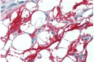 Image no. 3 for anti-Connective Tissue Growth Factor (CTGF) (C-Term) antibody (ABIN461977)