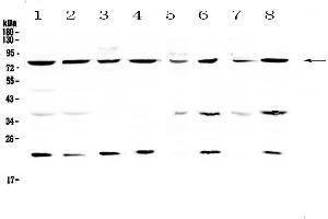 Image no. 4 for anti-MRE11 Meiotic Recombination 11 Homolog A (S. Cerevisiae) (MRE11A) (AA 2-239) antibody (ABIN5693272)