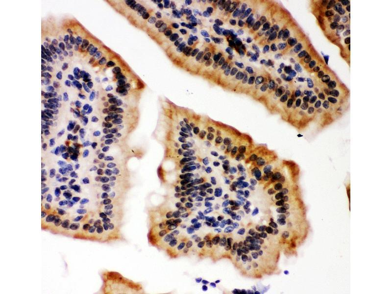 Immunohistochemistry (IHC) image for anti-E1A Binding Protein P300 (EP300) (AA 2065-2414) antibody (ABIN3042372)