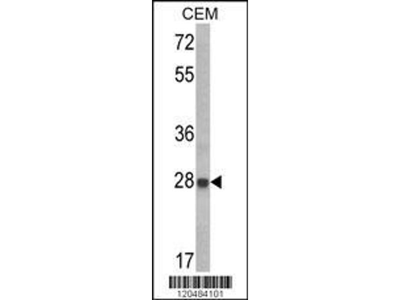 Western Blotting (WB) image for anti-Insulin-Like Growth Factor Binding Protein 6 (IGFBP6) (AA 176-200), (C-Term) antibody (ABIN390729)