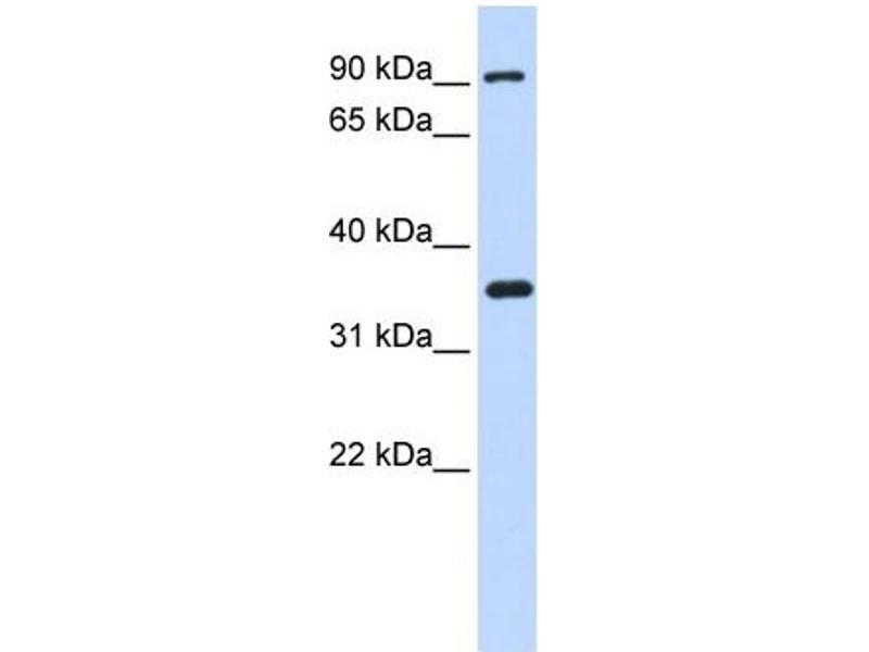 Western Blotting (WB) image for anti-Inhibitor of kappa Light Polypeptide Gene Enhancer in B-Cells, Kinase beta (IKBKB) (N-Term) antibody (ABIN2779787)