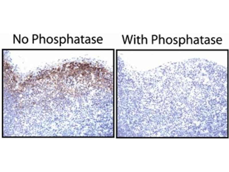 Immunohistochemistry (IHC) image for anti-Epidermal Growth Factor Receptor (EGFR) (pTyr1173) antibody (ABIN967603)