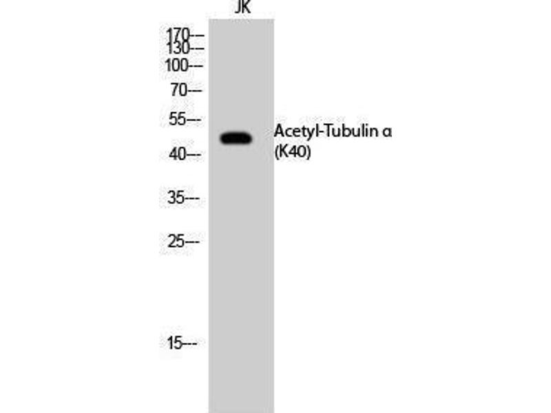 Western Blotting (WB) image for anti-TUBA1A antibody (Tubulin, alpha 1a) (acLys40) (ABIN3181895)