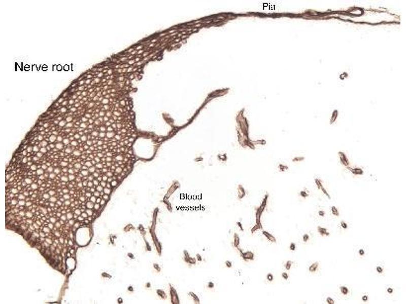 Immunohistochemistry (IHC) image for anti-Laminin (LN) (pan) antibody (ABIN152490)