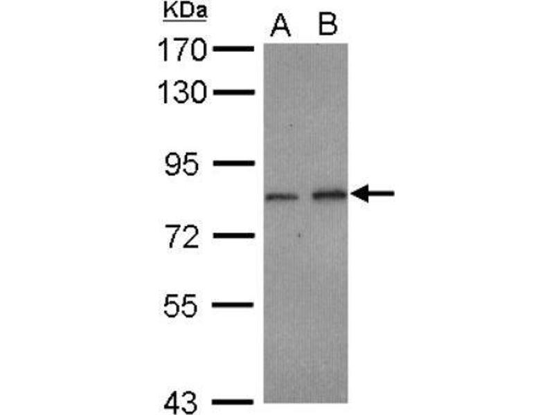 Western Blotting (WB) image for anti-Adaptor Protein, Phosphotyrosine Interaction, PH Domain and Leucine Zipper Containing 2 (APPL2) (C-Term) antibody (ABIN4305241)