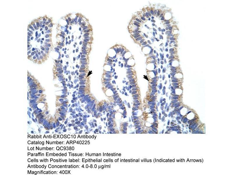 Immunohistochemistry (IHC) image for anti-Exosome Component 10 (EXOSC10) (C-Term) antibody (ABIN183903)