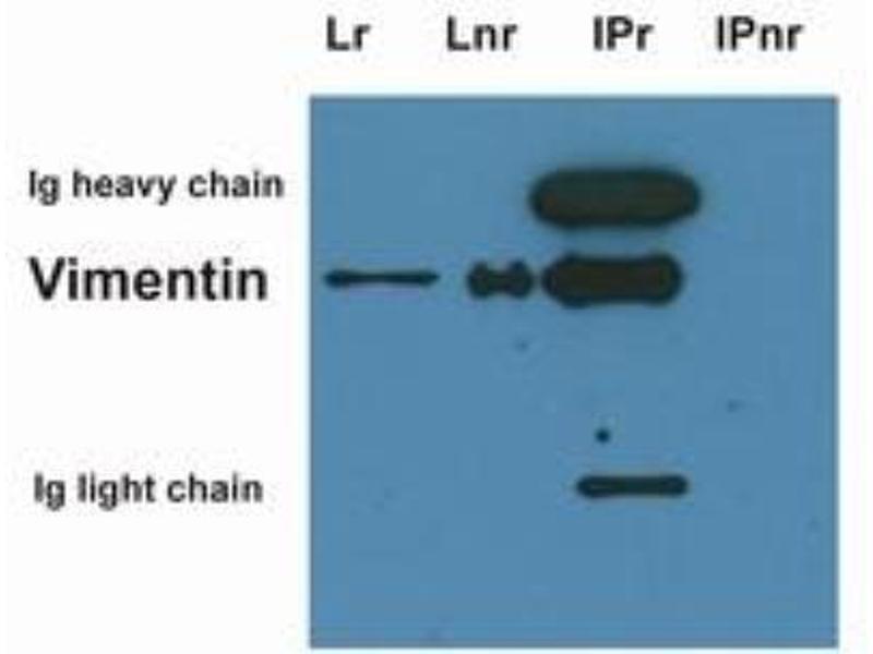 Western Blotting (WB) image for anti-Vimentin (VIM) antibody (ABIN268950)