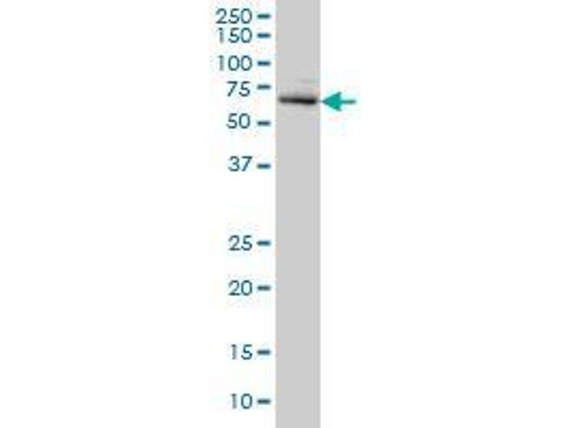 Immunohistochemistry (IHC) image for anti-ACD antibody (Adrenocortical Dysplasia Homolog (Mouse)) (AA 1-545) (ABIN395038)