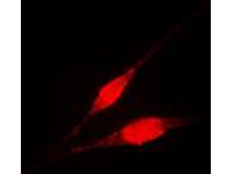 Immunofluorescence (IF) image for anti-IKBKG antibody (Inhibitor of kappa Light Polypeptide Gene Enhancer in B-Cells, Kinase gamma) (Center) (ABIN2706370)