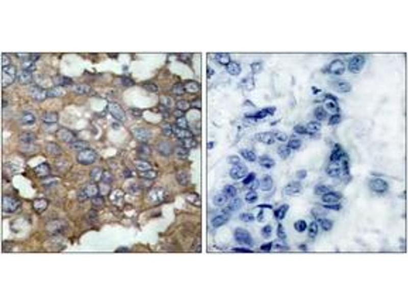 Immunohistochemistry (IHC) image for anti-V-Src Sarcoma (Schmidt-Ruppin A-2) Viral Oncogene Homolog (Avian) (SRC) (AA 487-536) antibody (ABIN1533006)