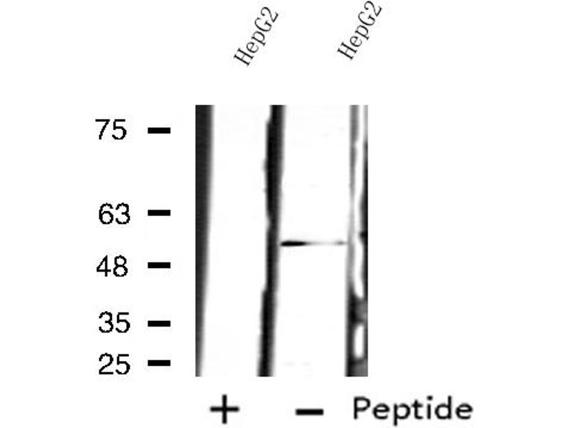Western Blotting (WB) image for anti-Proteasome (Prosome, Macropain) 26S Subunit, Non-ATPase, 12 (PSMD12) antibody (ABIN6257738)