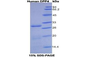 Image no. 1 for Dipeptidyl-Peptidase 4 (DPP4) protein (His tag) (ABIN1099045)